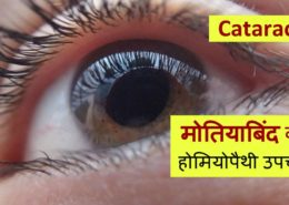 Homeopathic treatment for Cataract