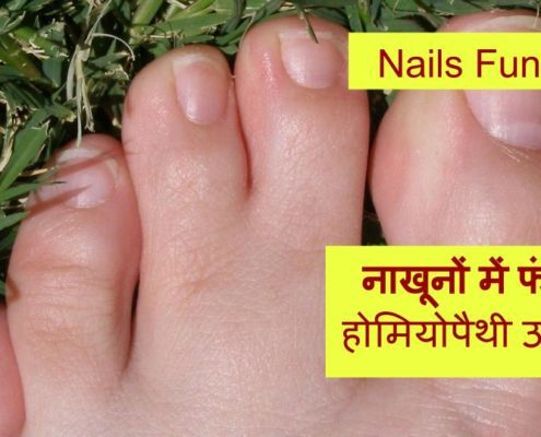 Homeopathic treatment for Nail Fungus