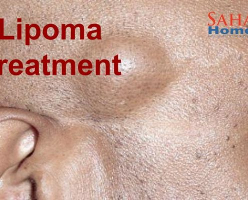 lipoma treatment by homeopathy