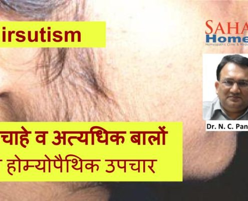 Homeopathic treatment for Hirsutism