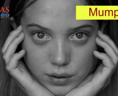 Mumps treatment