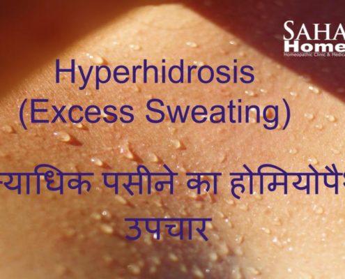 Hyperhidrosis treatment through homeopathy