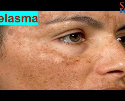 Melasma treatment in homeopathy