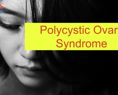 Polycystic ovary syndrome treatment