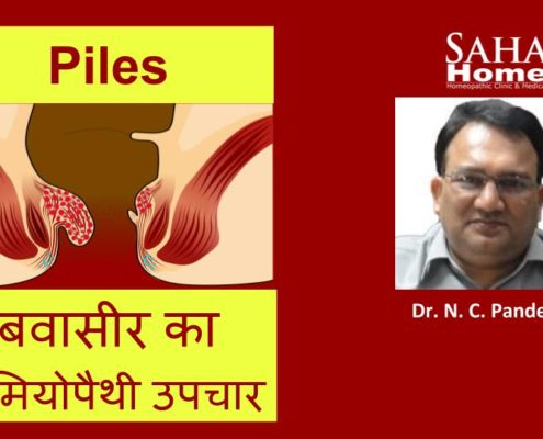 homeopathic treatment fo piles