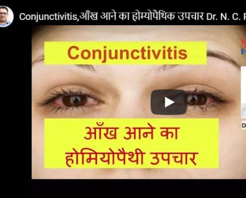 conjunctivities