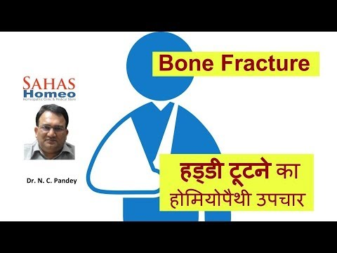 Homeopathic medicine for Bone fracture