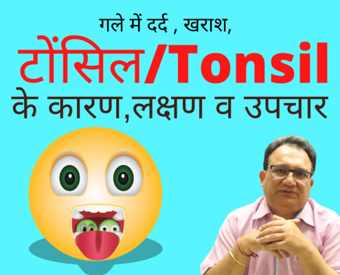 Tonsil treatment in homeoapthy