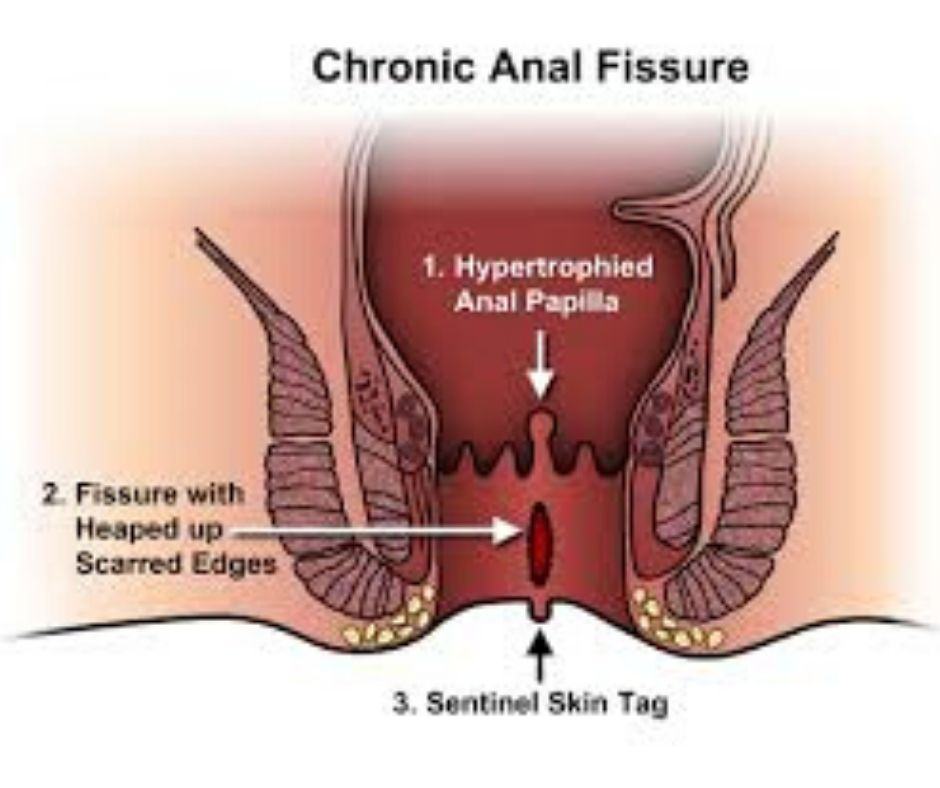 anel fissure treatment in homeopthy