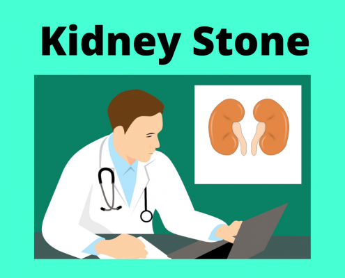 kidney stone treatment in homeoapthy